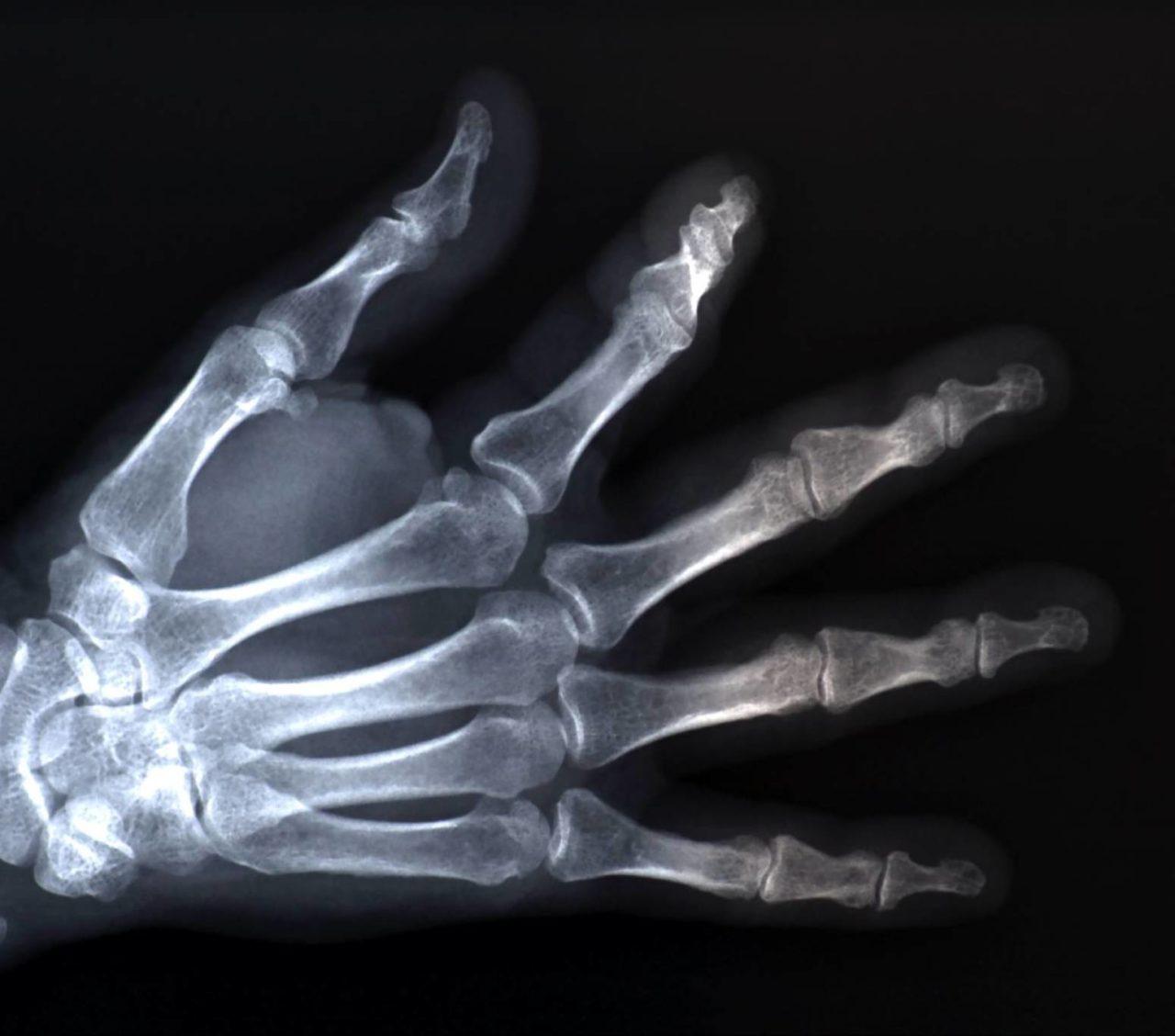 røntgenbilde-1280x1128.jpg